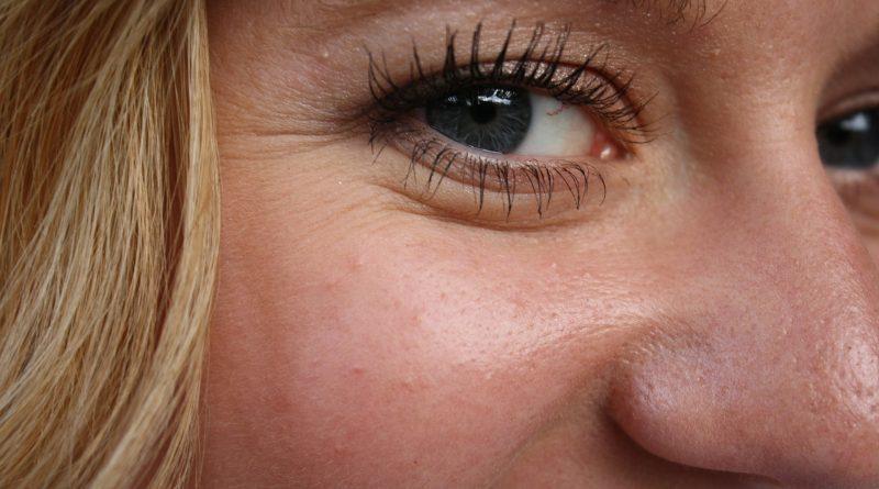 Kraaienpootjes met botox behandelen